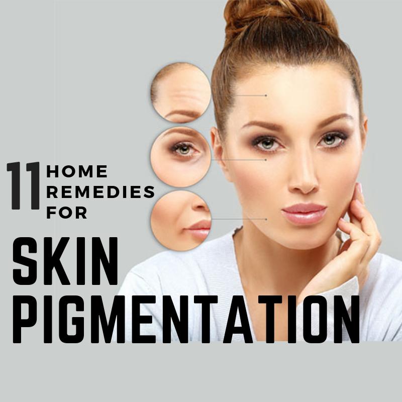 skin-pigmentation-remedies
